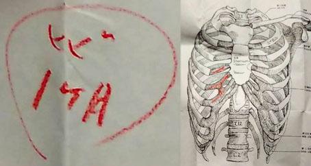 ナオヒロ肋骨3本にヒビ